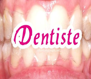 des grandes dents
